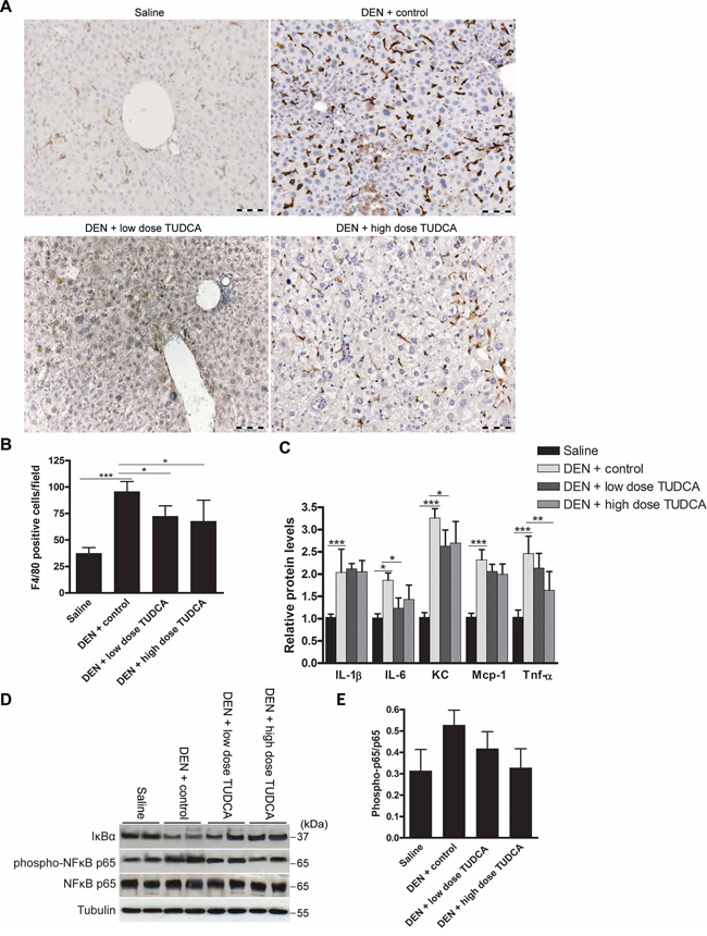 Effect of TUDCA on DEN-induced hepatic inflammation.