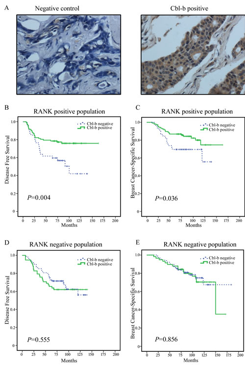 Representative images of Cbl-b immunohistochemical staining in breast cancer and the correlation between Cbl-b expression and patient survival in RANK positive breast cancer patients.