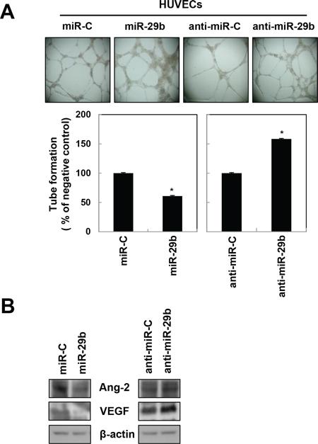 miR-29b attenuates angiogenesis in HUVECs.