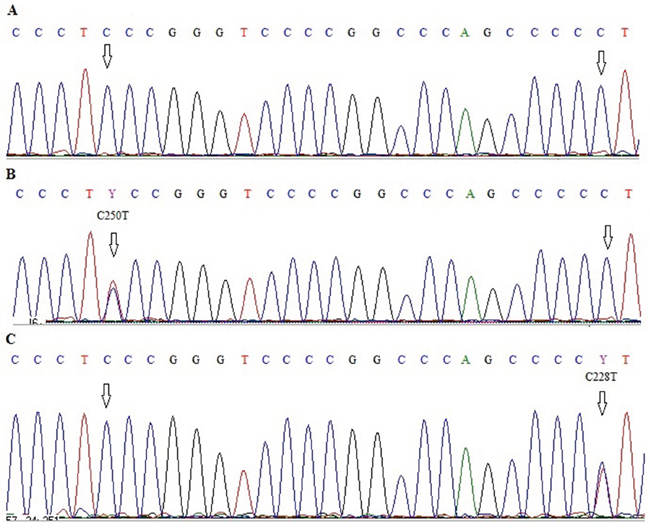 Electropherograms showing sequence of TERT promoter region with two hot-spot mutations C228T and C250T