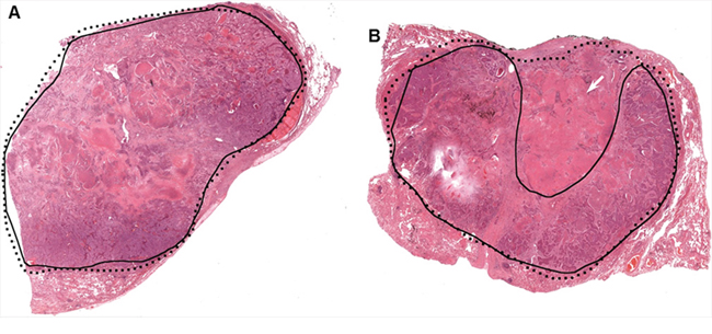 Two examples of manual tumor annotation showing observer varibility.