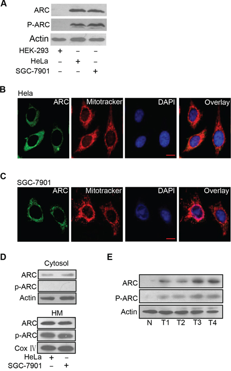 ARC is phosphorylated and localizes to mitochondria in cancer cells.