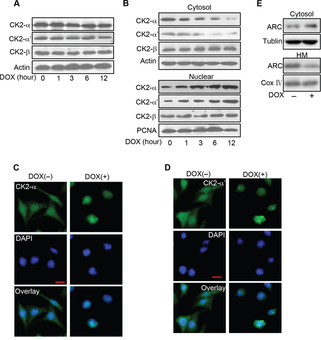 CK2α translates to nuclear in cancer cells exposed to DOX.