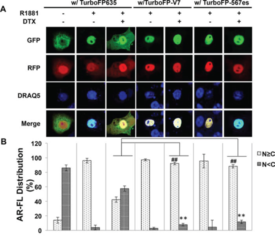 Cytoplasmic sequestration of AR-FL by docetaxel is attenuated by AR-V7 and ARv567es.