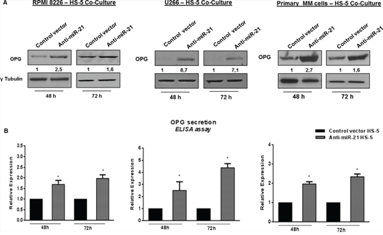 Constitutive miR-21 inhibition significantly increases OPG production.