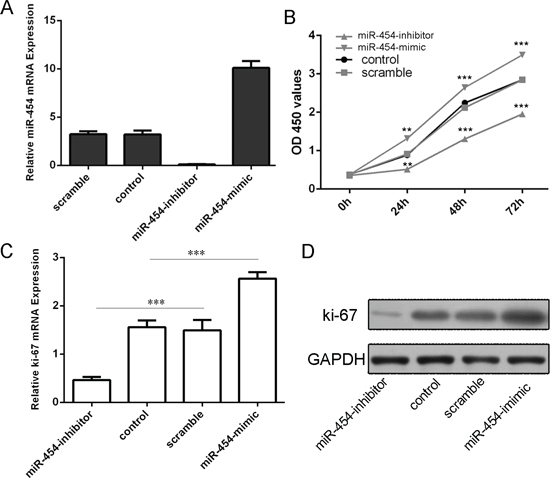 Figue 3: Knockdown of miR-454 inhibited HCC cell proliferation.