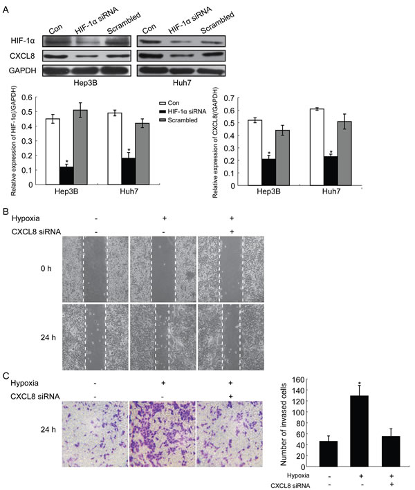 Representative images HIF-1α promotes migration and invasion of HCC cells by regulating CXCL8 expression.