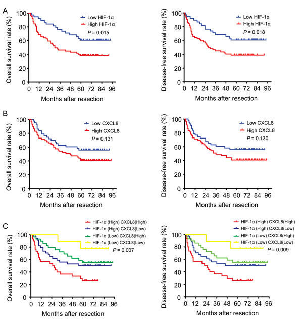 The impact of HIF-1α and CXCL8 expressions on the survival of HCC patients.