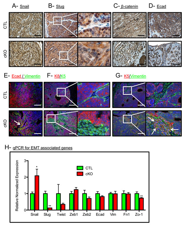 BMPR1a deletion in mammary carcinomas results in EMT-like changes.