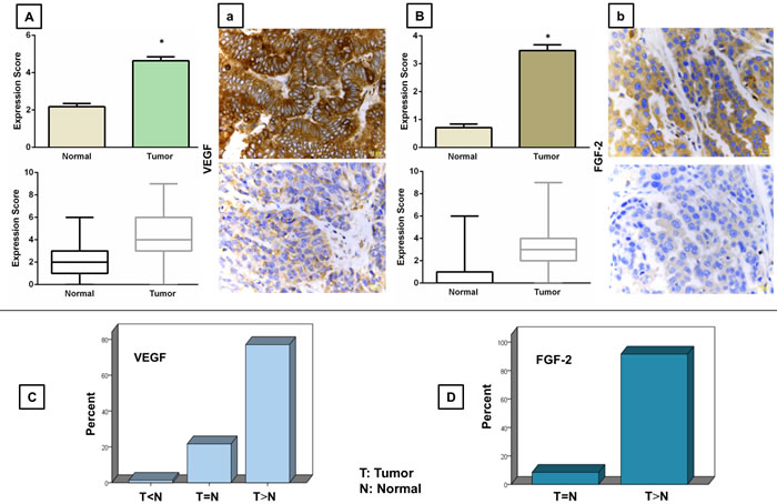 Immunohistochemical analysis of VEGF (A-a) and FGF (B-b) expressions in human epithelial ovarian cancer tissue.