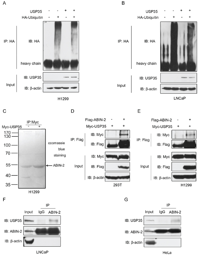 USP35 acts as a functional DUB and interacts with ABIN-2.