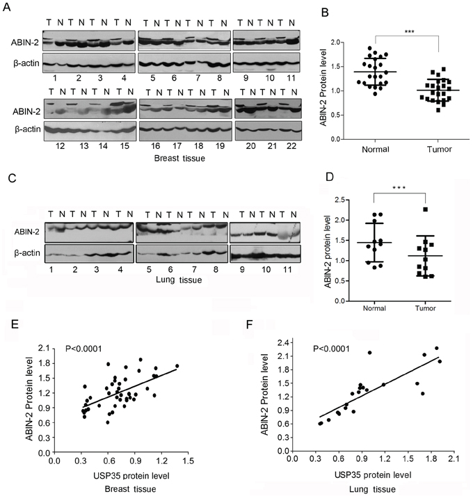 ABIN-2 expression is down-regulated in cancer tissues and positively correlated with USP35 expression.