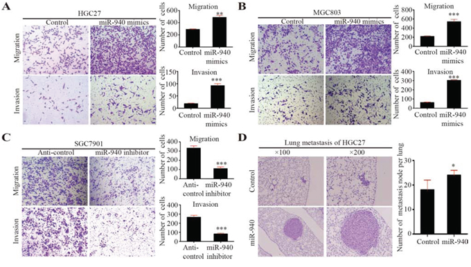 MiR-940 promotes migration and invasion of gastric cancer cells in vitro and metastasis in vivo.