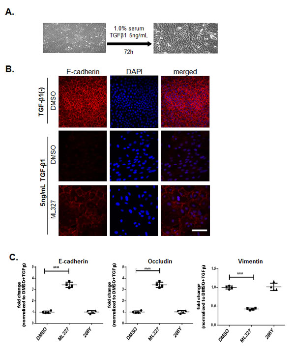 Treatment with ML327 partially reverses TGF-β-induced EMT.