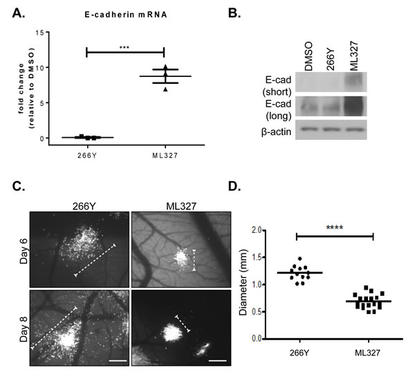 Treatment with ML327 inhibits tumor cell migration