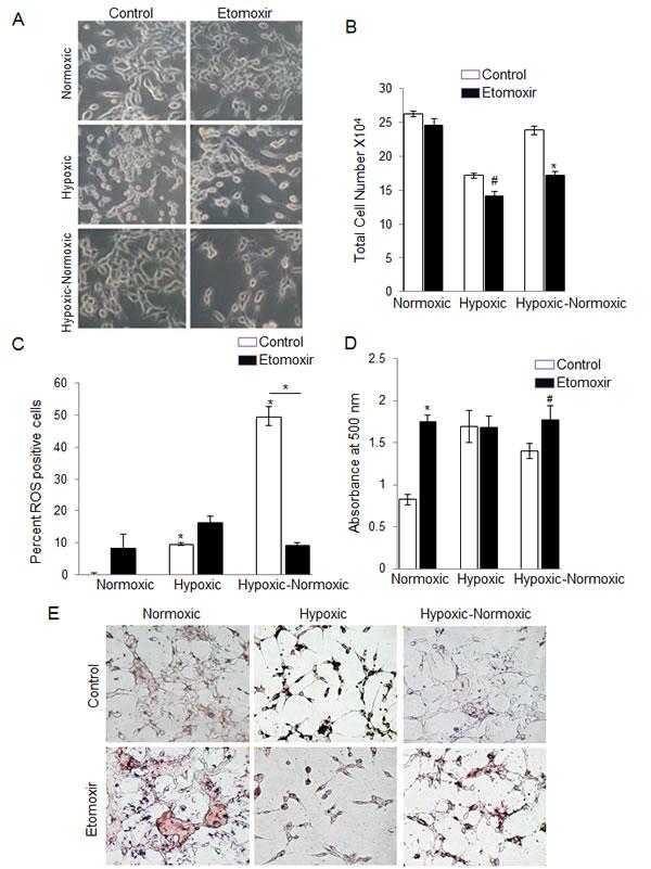 Inhibition of lipid β-oxidation by etomoxir decreases cell growth following reoxygenation in hypoxic LNCaP cells.