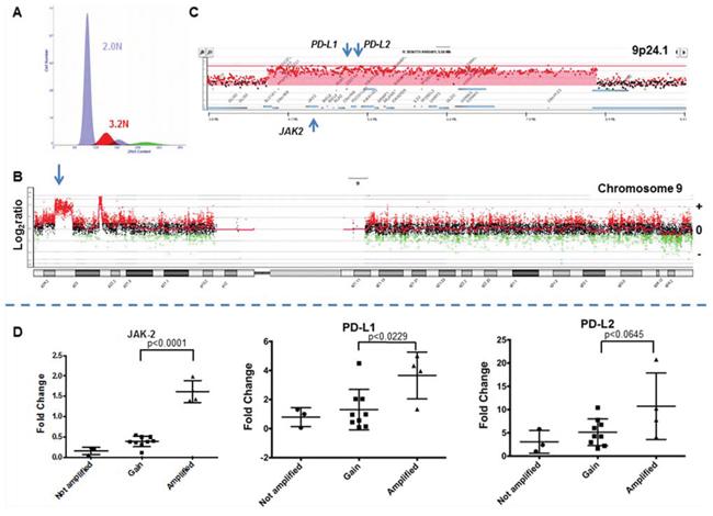 The 9p24 amplicon in a triple negative breast cancer genome.