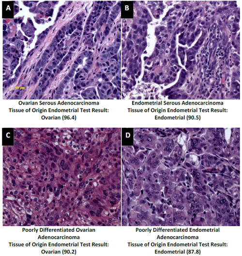 Distinction of ovarian and endometrial cancers by the Tissue of Origin Endometrial Test.