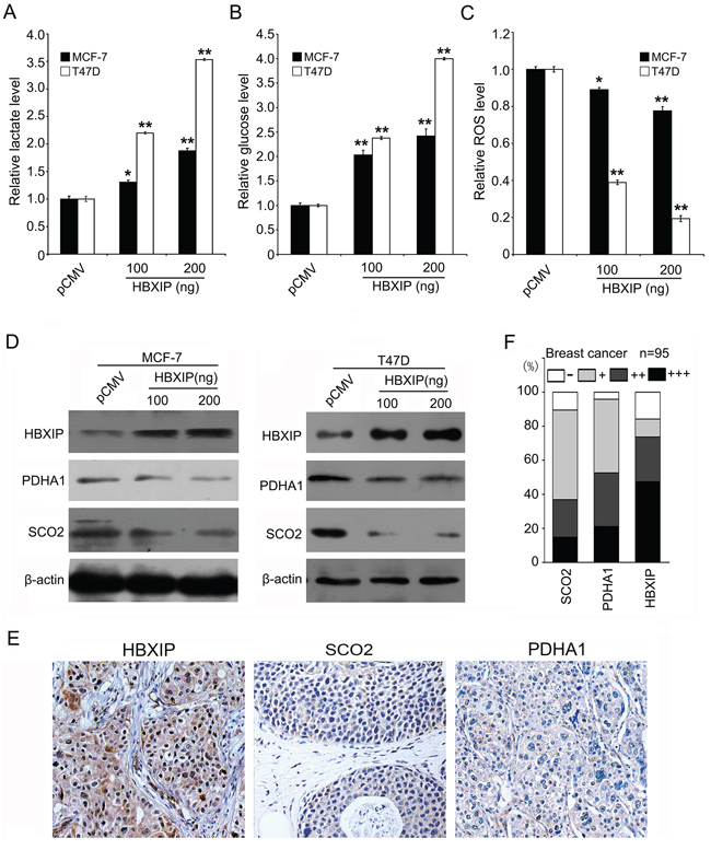HBXIP regulates glucose metabolism reprogramming and downregulates SCO2 and PDHA1 in breast cancer.