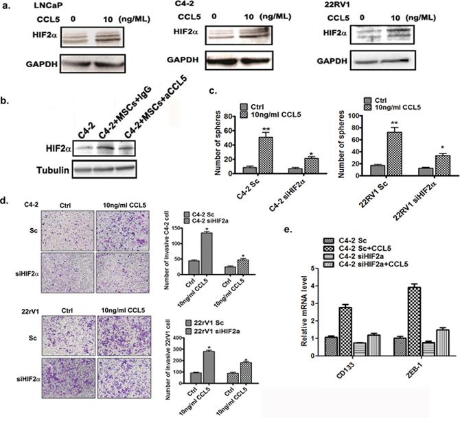 BM-MSCs secrete CCL5 to induce the HIF2α expression.