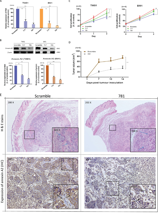 Silencing of annexin A2 (ANXA2) ihibits cell proliferation both in vitro and in vivo.