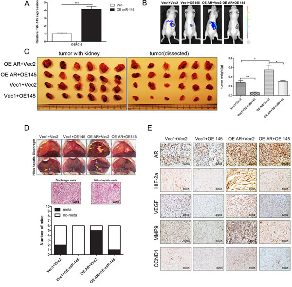 AR promotes growth and metastasis of RCC