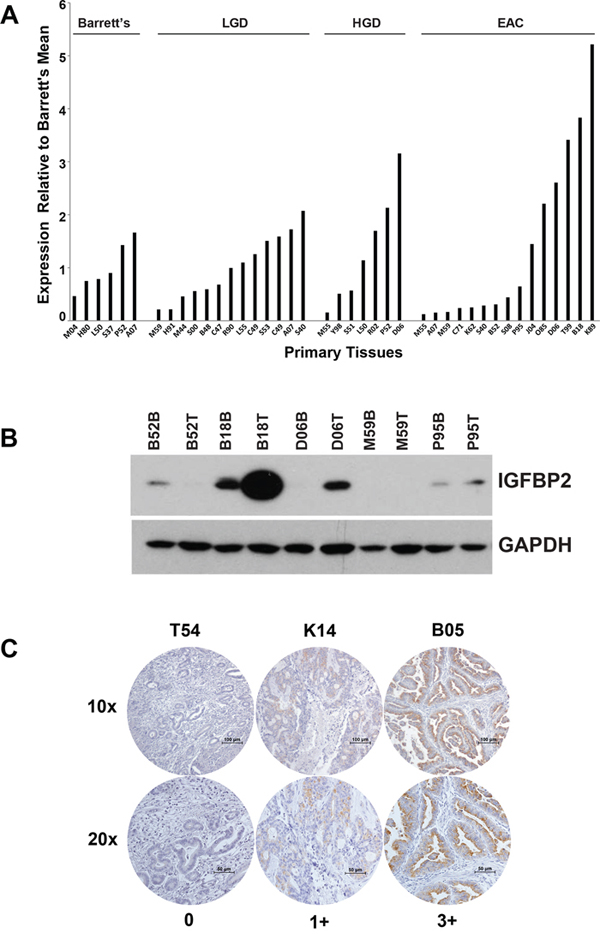 IGFBP2 expression in esophageal tissues and EACs.
