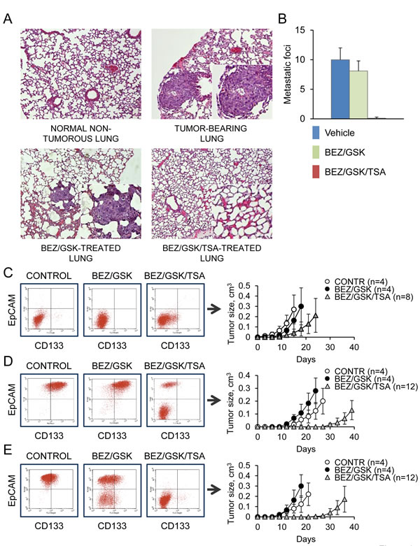 Combined MEK/PI3K/HDAC inhibition prevents lung metastasis