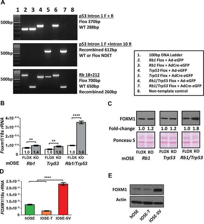 FOXM1 expression in murine and human OSE cells following Rb and/or p53 abrogation.