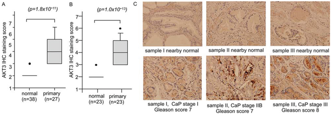 Protein expression of AKT3 in normal human prostate tissues versus prostate tumors.