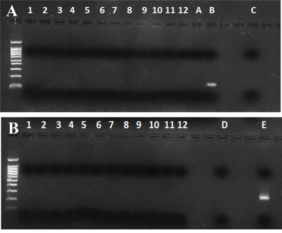 Murine mitochondrial DNA and Intracisternal A Particles long terminal repeats (IAP LTRs) PCR in human saliva.