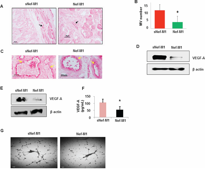 Effect of the Nef-M1 peptide on angiogenesis of CRC as determined by immunostaining for the endothelial marker CD31.