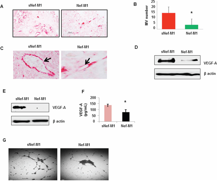 The effect of the Nef-M1 peptide on angiogenesis of BC as determined by immunostaining for CD31.