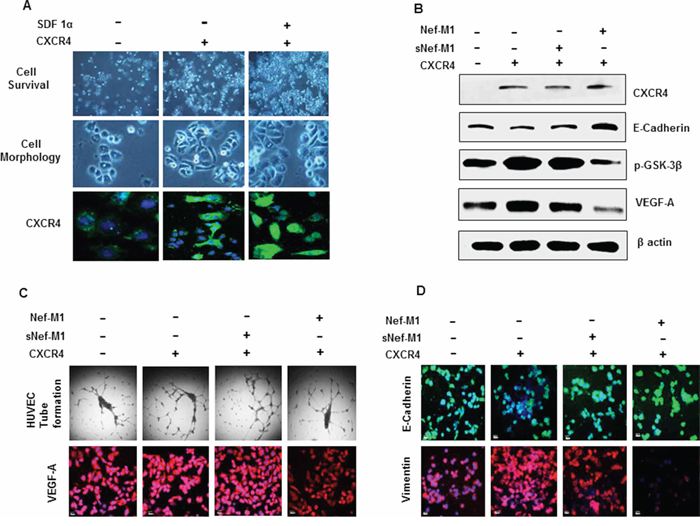 A. Proliferation and morphologic features of MDA-MB468 cells overexpressing CXCR4.