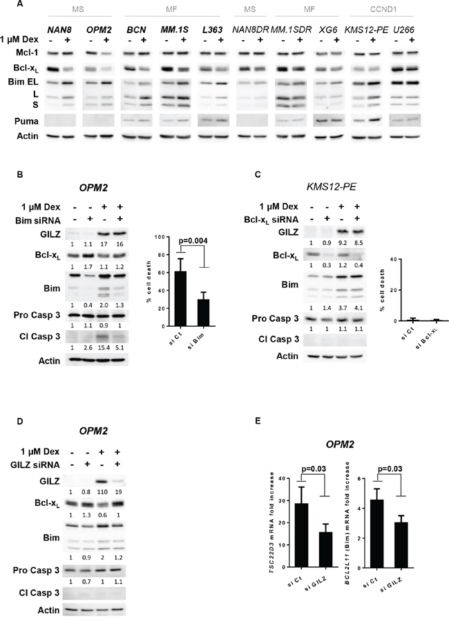 GILZ is involved in Bim up-regulation and Bcl-xL down-regulation associated with Dex-induced apoptosis.