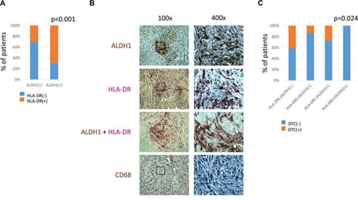 Comparison of ALDH1, CD68 and HLA-DR expression in stromal cells.