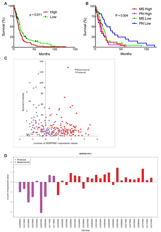 High SERPINE1 expression in human glioma correlates with low survival rate.