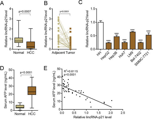 LincRNA-p21 is down-regulated in hepatocellular carcinoma.