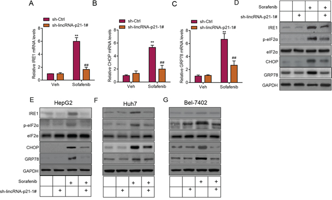 LincRNA-p21 contributes to sorafenib-induced ER stress in vivo.