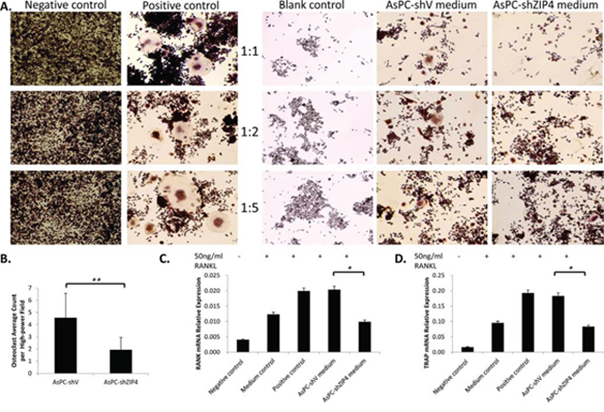 The differentiation of RAW264.7 cells to osteoclast was enhanced when culturing in the conditioned medium from AsPC-shV cells, compared with that from AsPC-shZIP4 cells.