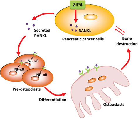 Diagram for ZIP4-induced bone loss in pancreatic cancer.