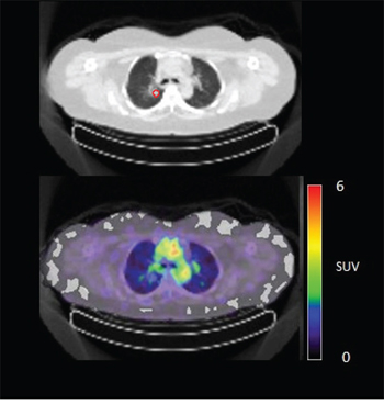 Figure 4C: 89Zr-cetuximab PET scan of patient 10 at day 6 p.i. without visible uptake in tumor lesion in the upper lobe of the right lung.