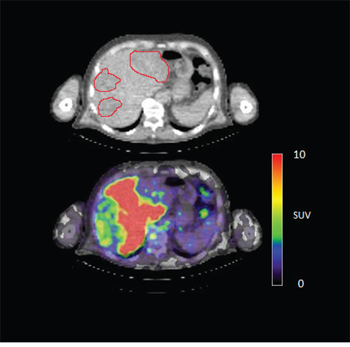 Figure 4D: 89Zr-cetuximab PET scan of patient 3 at day 6 p.i. illustrating high accumulation in healthy liver with relative photopenic area's in metastases.