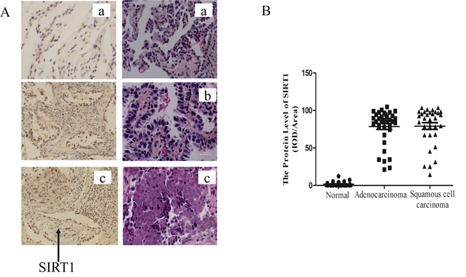 SIRT1 was up-regulated in human lung cancer biopsies.