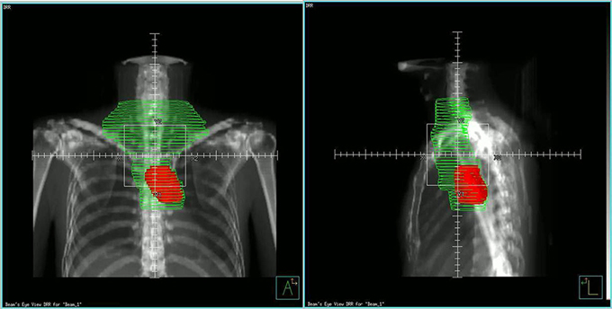 The radiation plan displays on the coronal and sagittal planes.