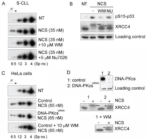 DNA DSB-induced phosphorylation of Ku70 requires DNA-PKcs activity in CLL cells.