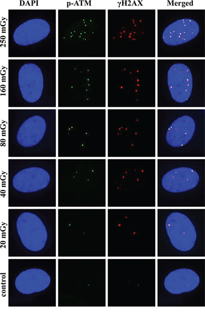 Representative images of γH2AX and pATM foci and their co-localization at 30 min post-irradiation.