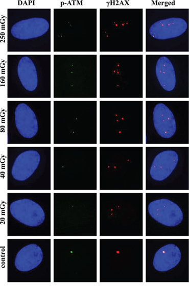 Representative images of γH2AX and pATM foci and their co-localization at 240 min post-irradiation.