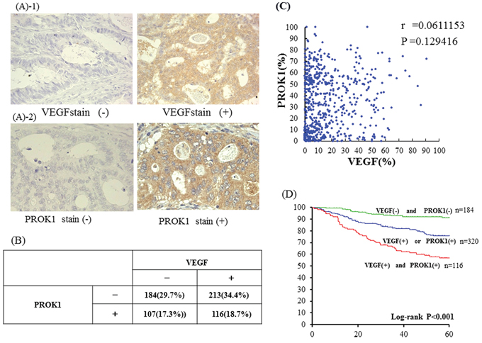 A-1. Immunohistochemical staining with anti-VEGF mAb Left: VEGF expression was not detected inprimary colorectal cancer lesion.