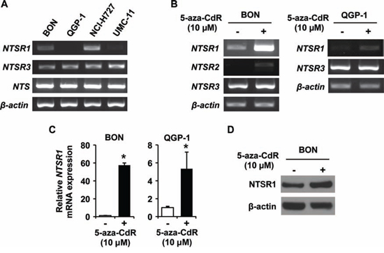 Expression analysis of NTSRs in endogenous and 5-aza-CdR treated NET cell lines.